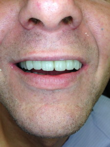 Dental ImplantsS in Clifton, NJ