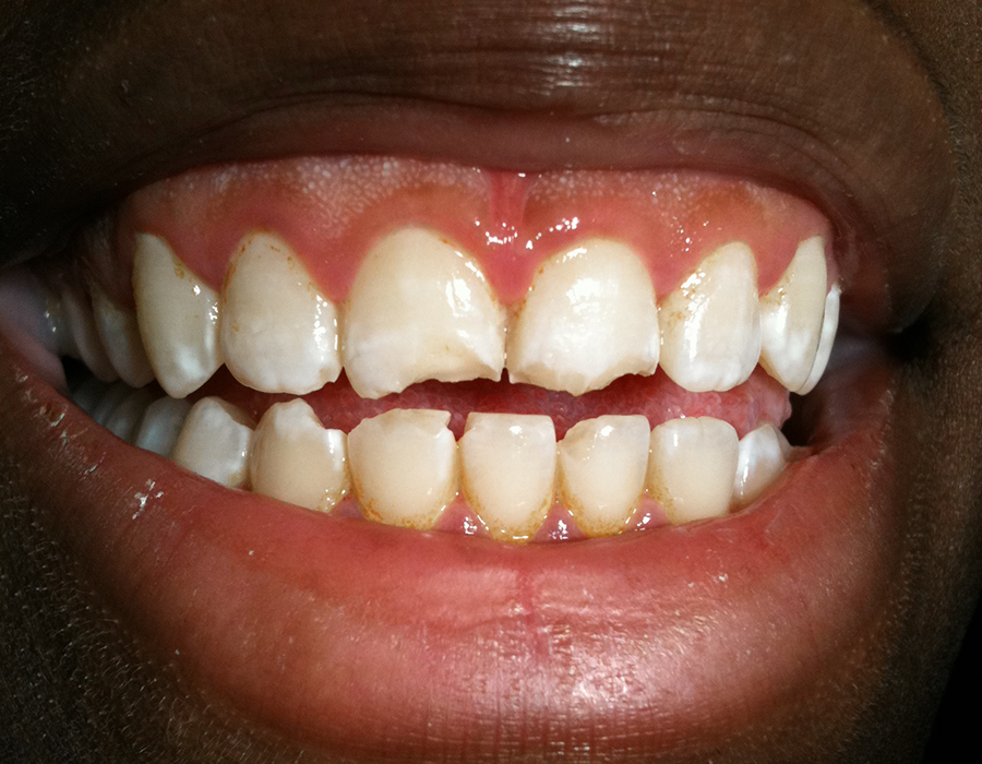 LAMINATE VENEERS in Clifton, NJ