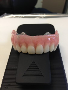 Removable Implant Supported Restorations 1