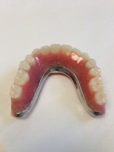 Removable Implant Supported Restorations 3
